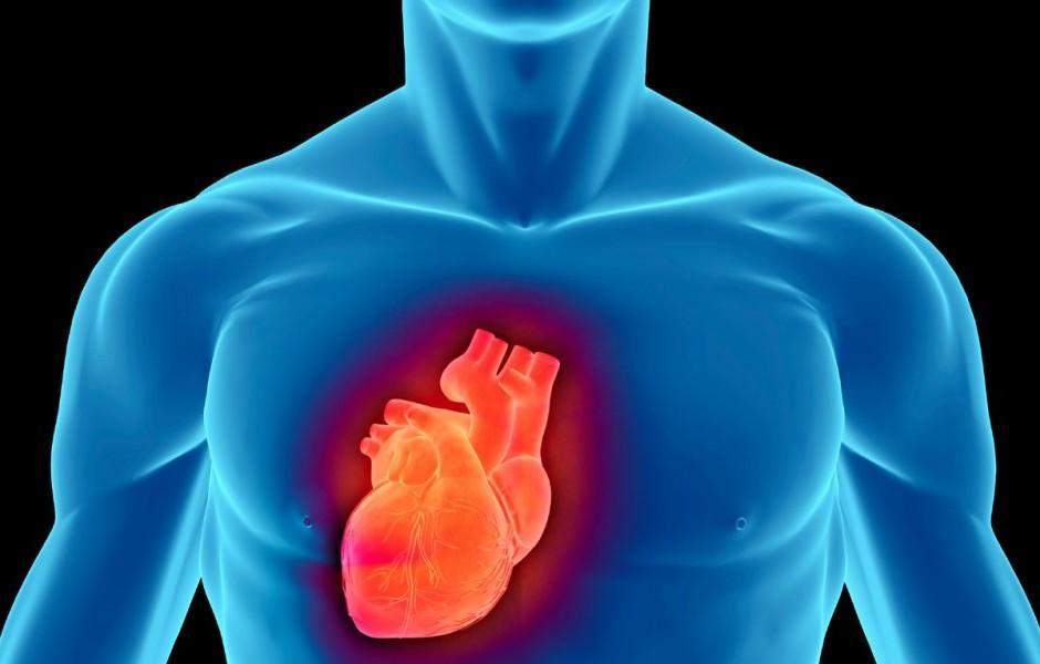 Cateterismo Cardíaco na Coronária: O Que É e Como funciona