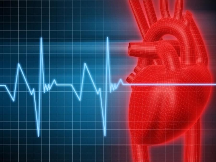 Exames Para Diagnosticar Problemas Cardíacos