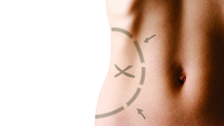 Lipoaspiração Para Modelar o Corpo