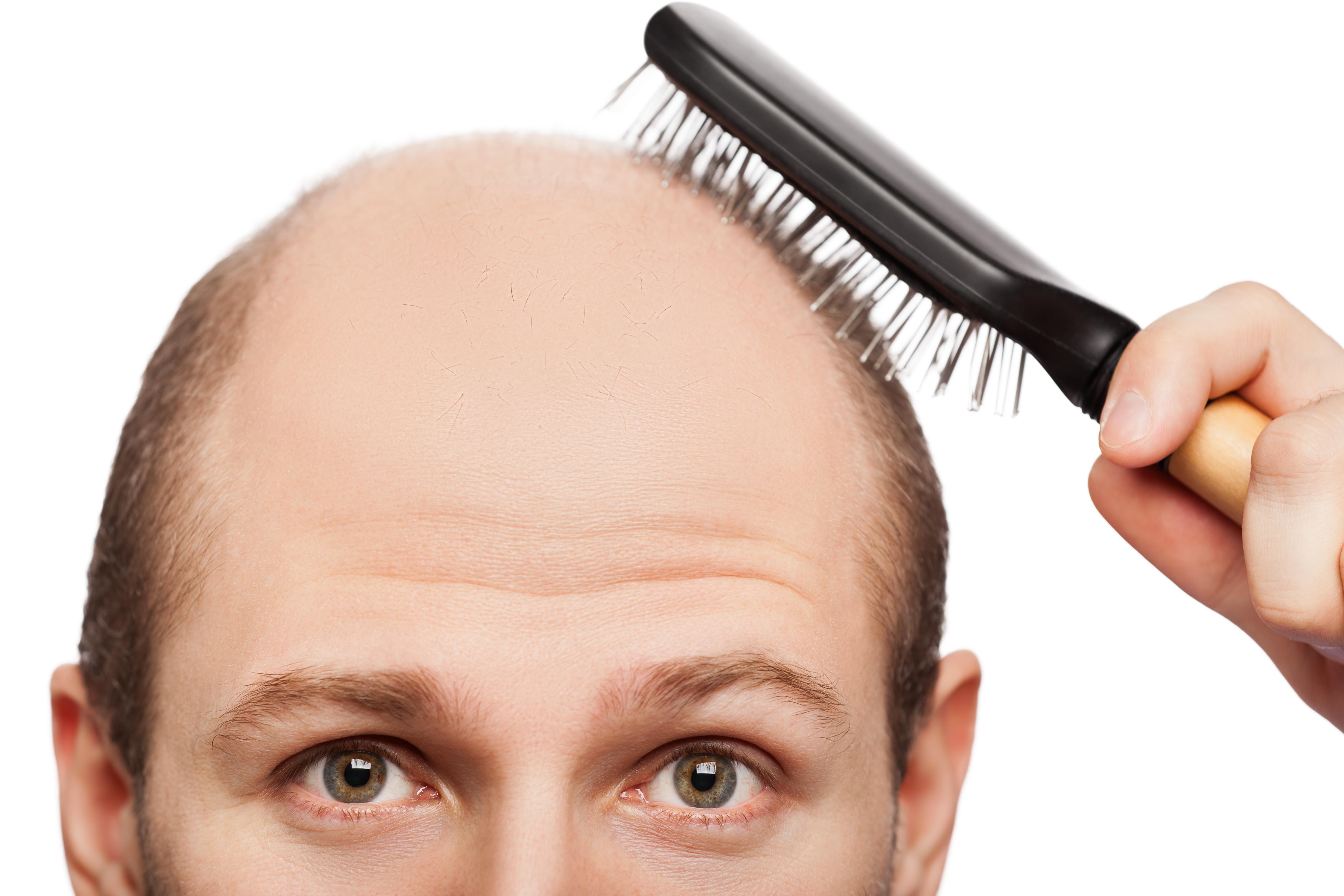 Plasma Rico em Fatores de Crescimento Para o Tratamento de Alopecia