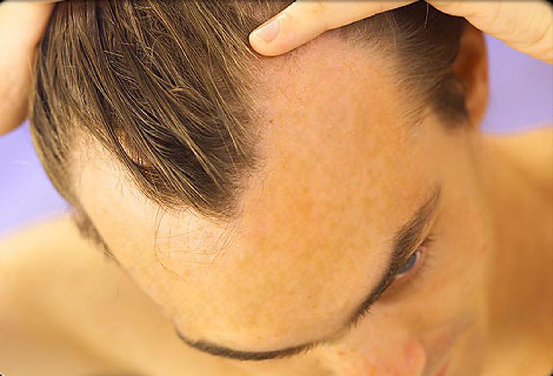 Terapias Alternativas Para a Perda de Cabelo