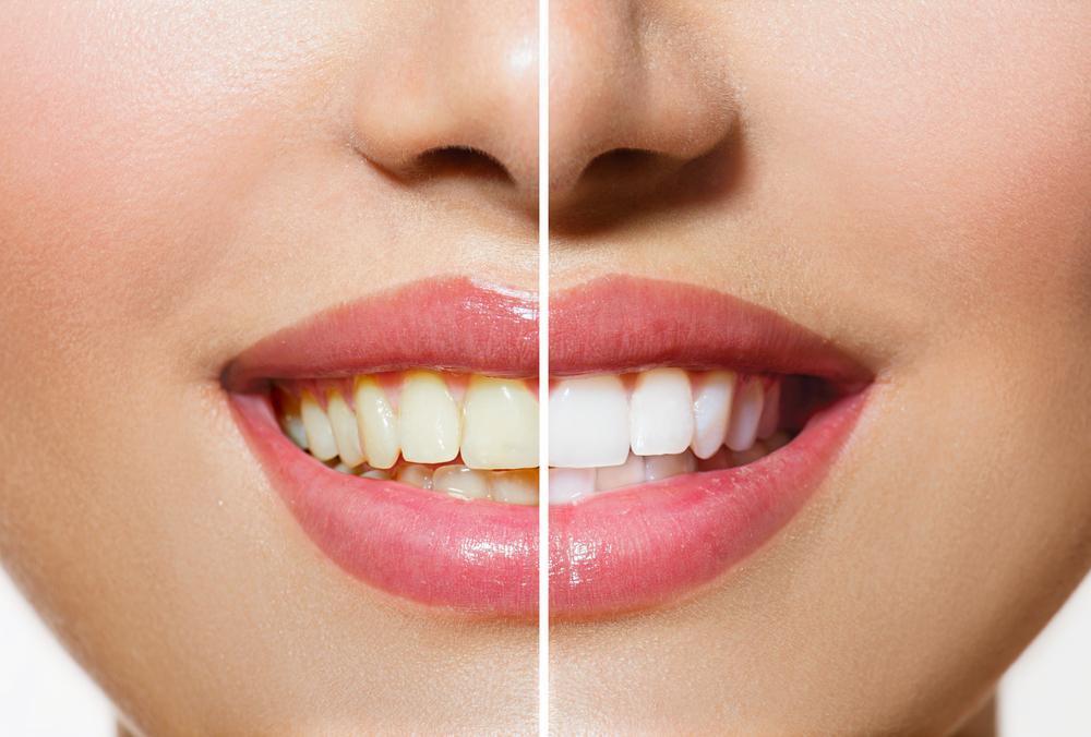 Dentes Brancos Naturalmente Com Óleo de Coco