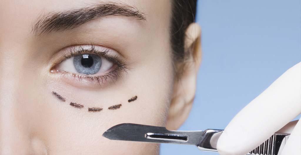 Blefaroplastia Para Rejuvenescer o Seu Olhar