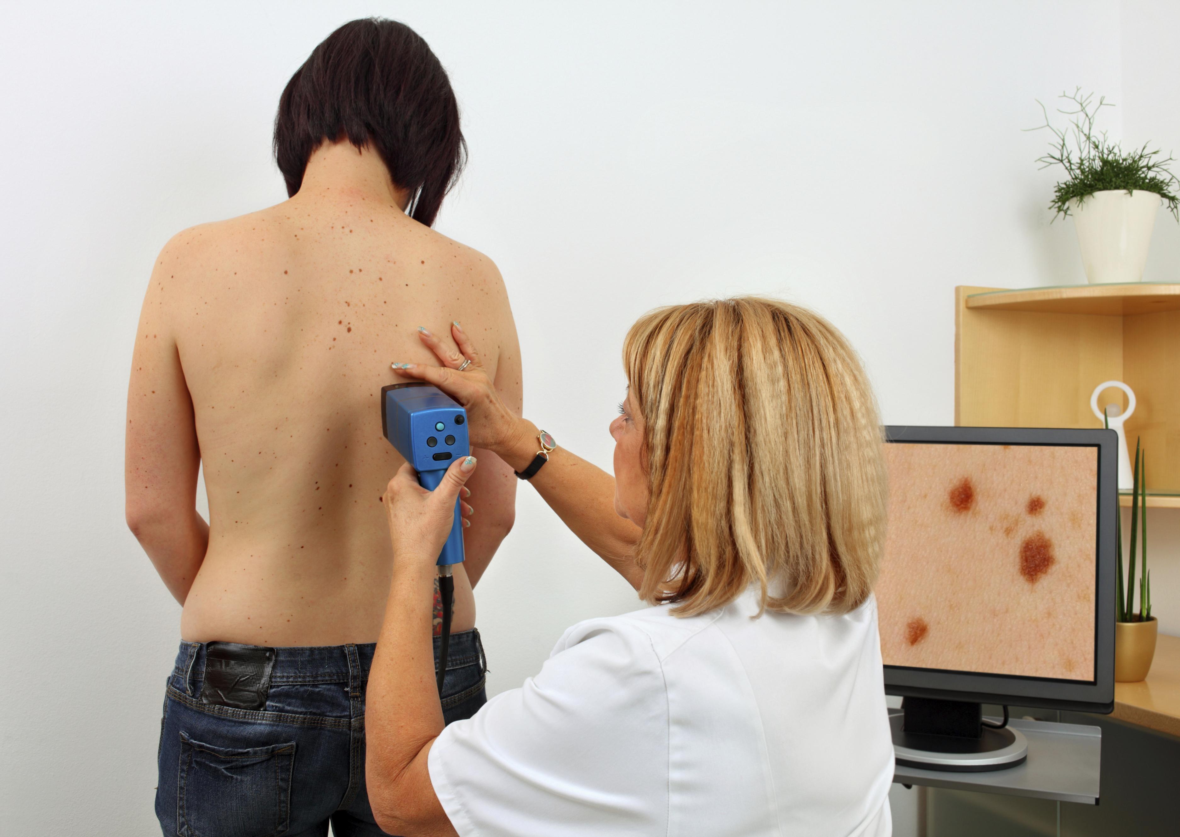 Como Identificar um Melanoma