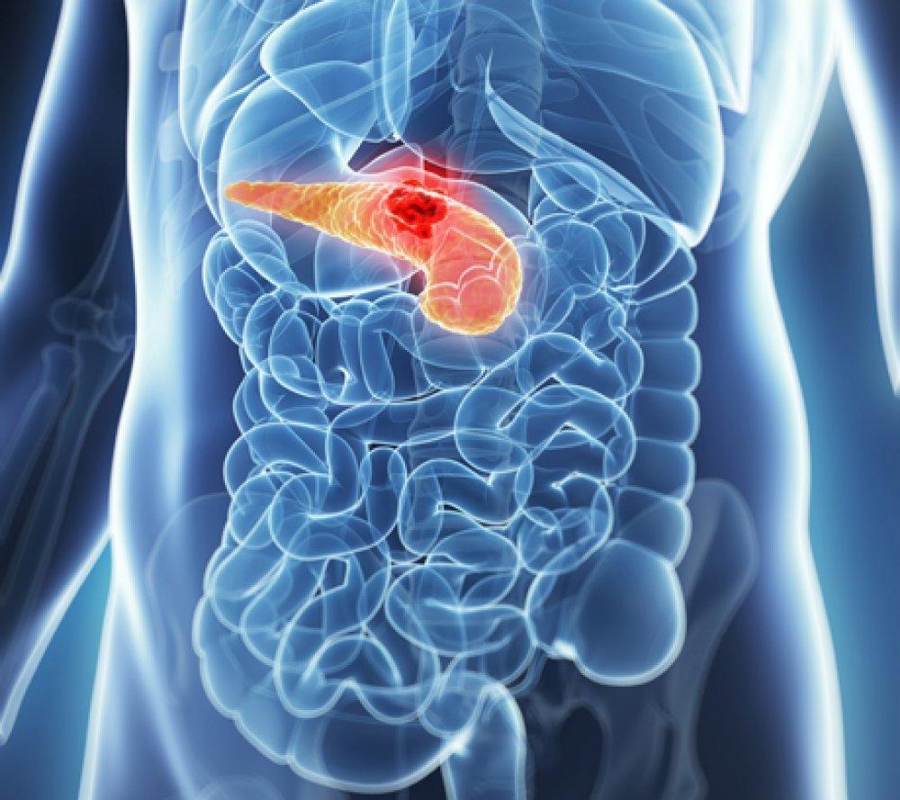 """Câncer do Pâncreas: Causas e Sintomas Desta Doença """"Silenciosa"""""""