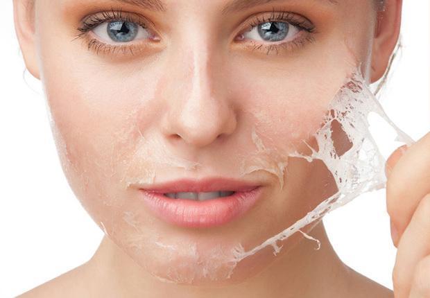 Peeling Químico: Prós e Contras