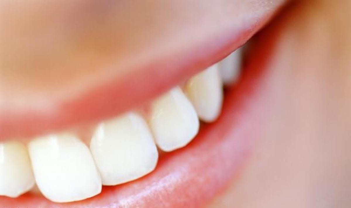 A Cárie Dentária: Um Inimigo Silencioso