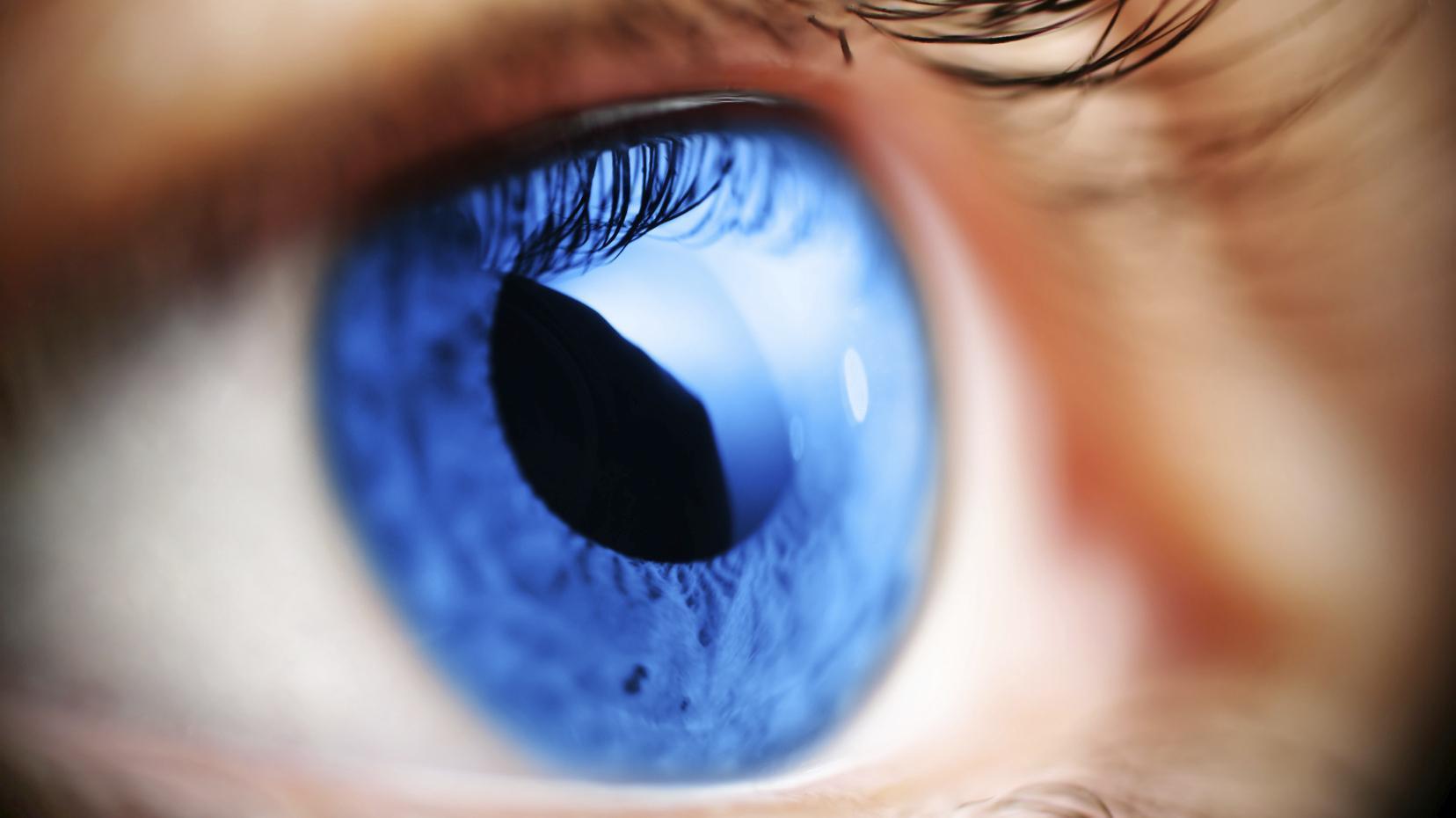 Glaucoma: Inimigo Silencioso da sua Visão