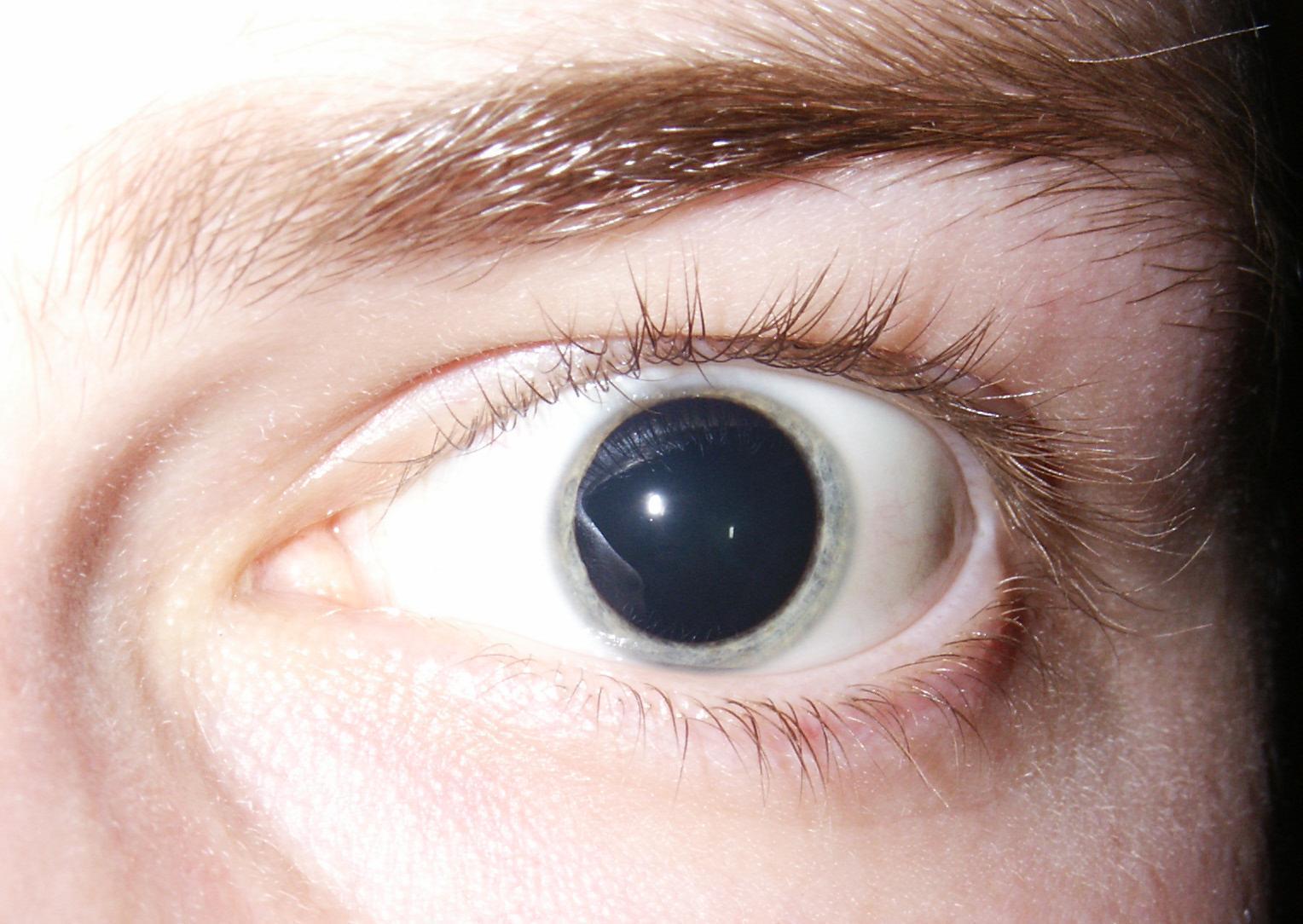 Síndrome de Adie: O Que É, Causas, Sintomas, Diagnóstico e Tratamentos