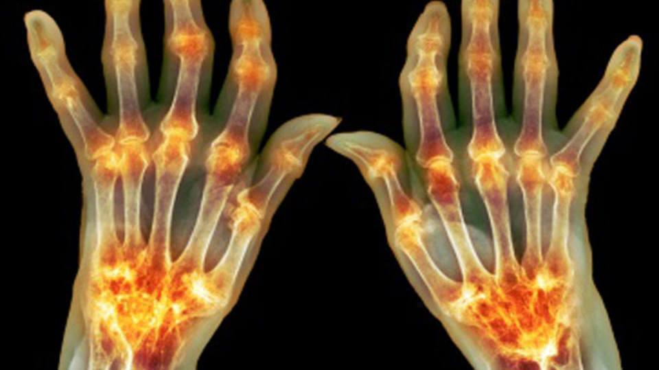 Fator Reumatoide: O Que É e Como Funciona