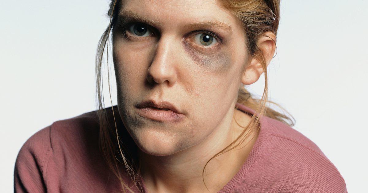 Remédios Caseiros Para os Olhos Roxos ou Contusões nos Olhos