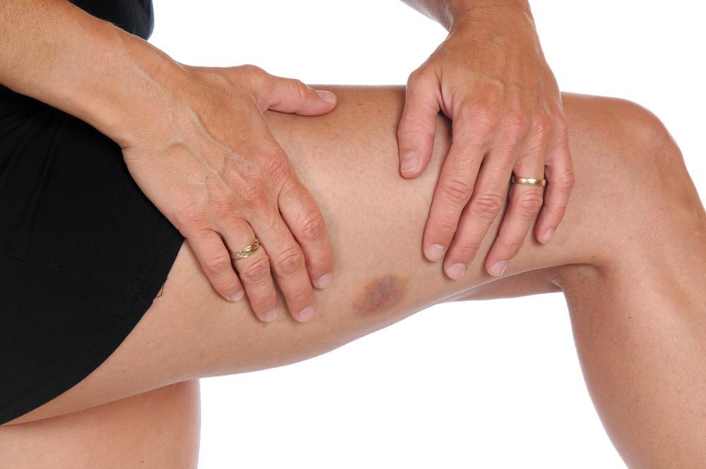 Apresentar Facilmente Um Hematoma na Pele Pode Ser Sinal de Um Problema Subjacente