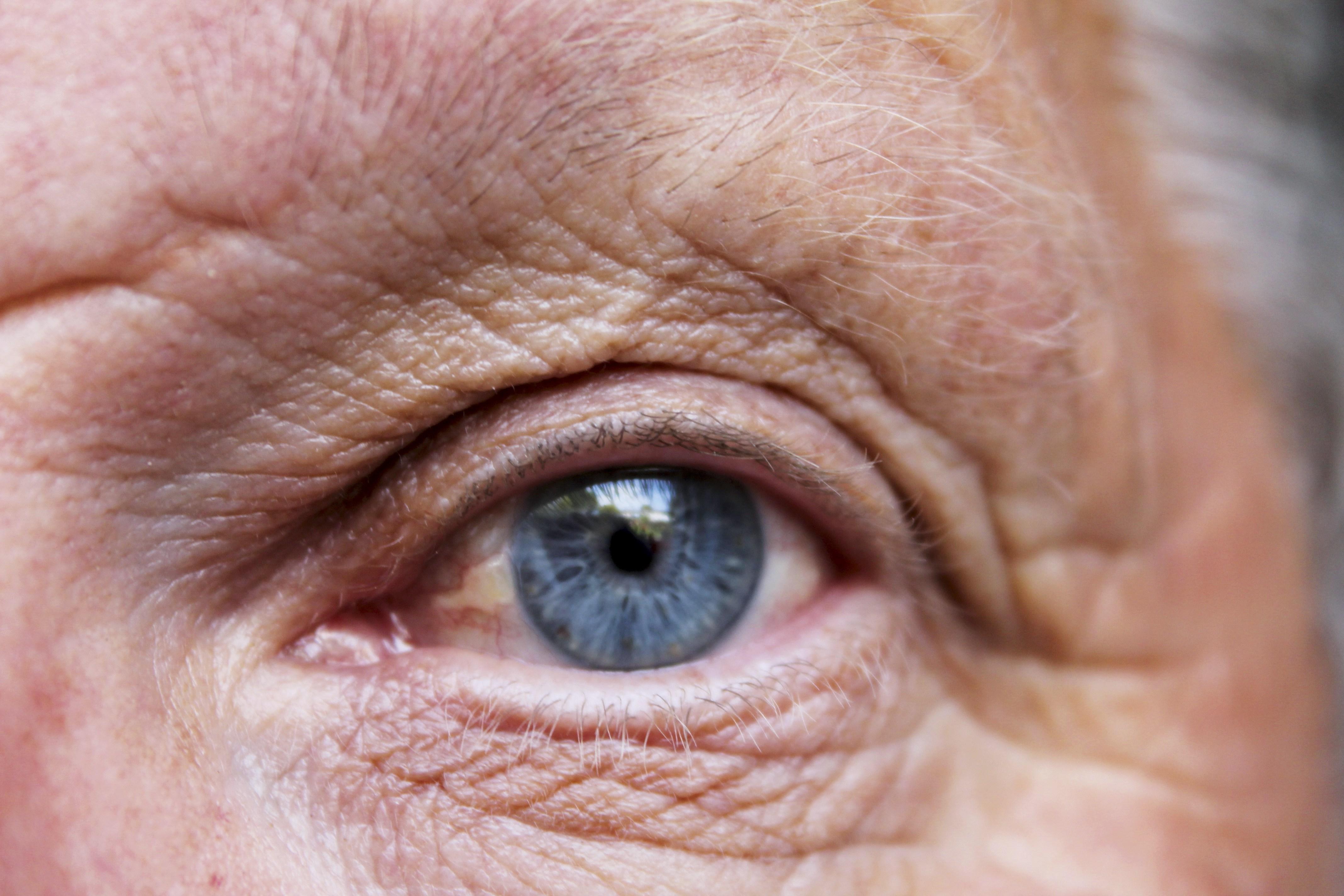 Remédios Caseiros Para a Degeneração Macular (Preventivo)