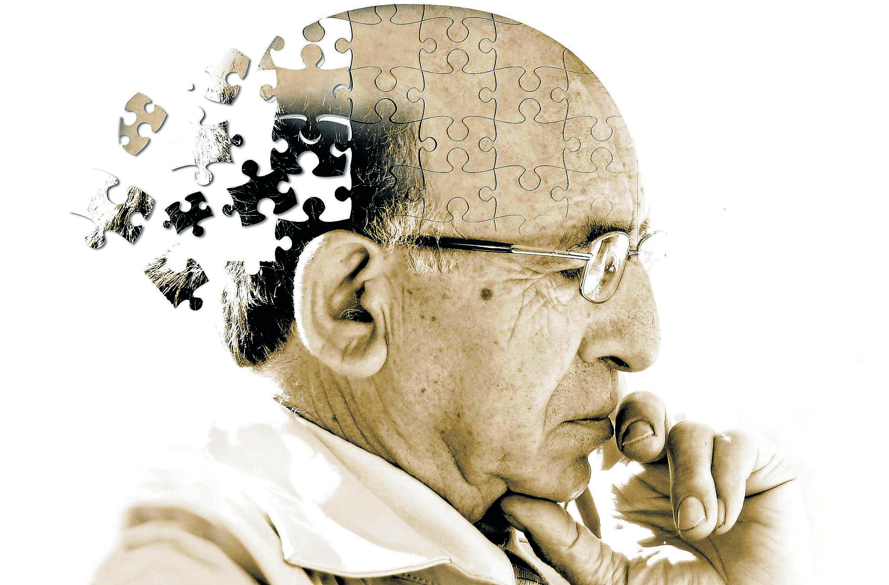 Prevenir o Alzheimer Com Exercícios Aeróbicos