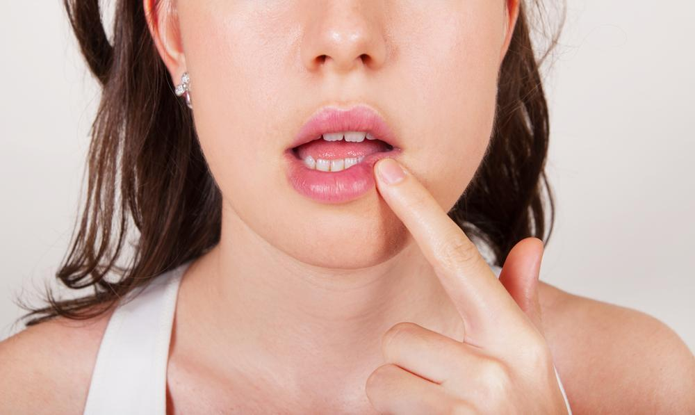 Remédios Caseiros para Herpes Zoster