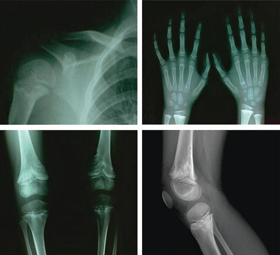 Síndrome de Shwachman-Diamond: O Que É, Causas, Sintomas, Diagnóstico e Tratamento