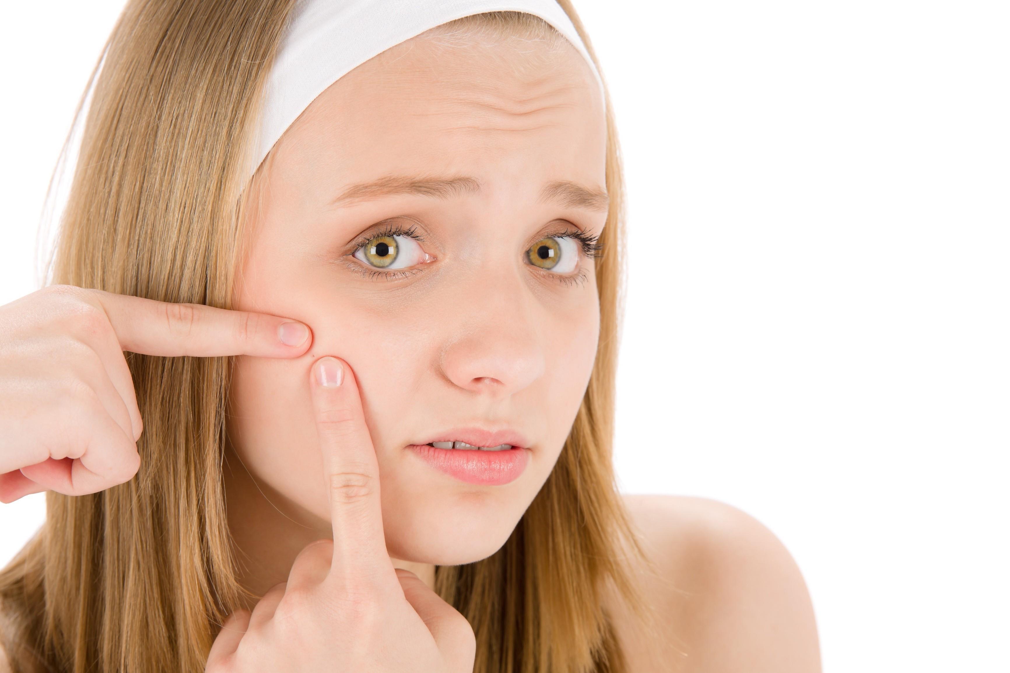 Truques Naturais Para Eliminar a Acne