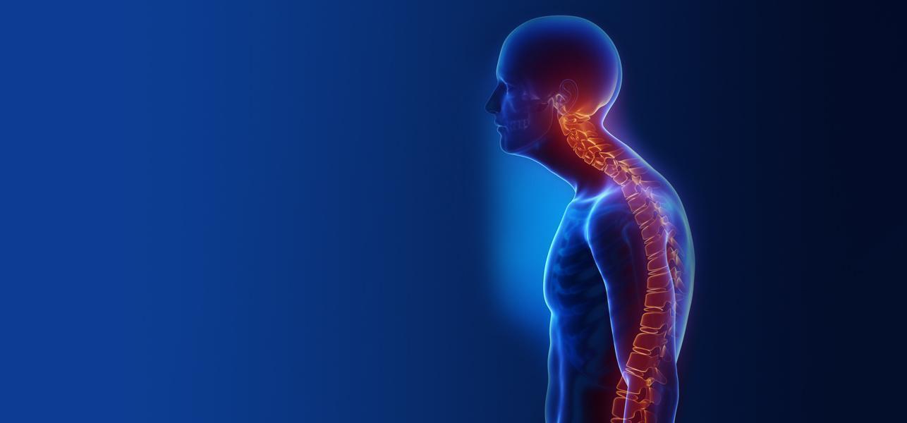 Remédios Caseiros Para Osteopenia