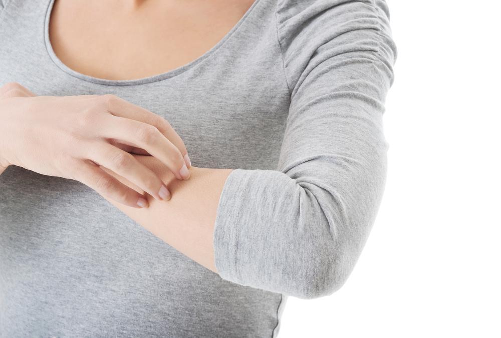 Urticária Crônica: Sintomas e Tratamentos