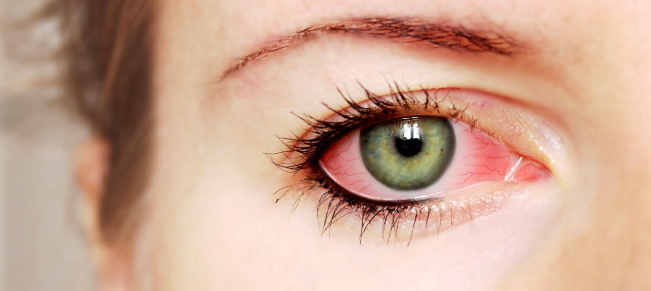 5 Doenças Sexualmente Transmissíveis Que Danificam os Olhos