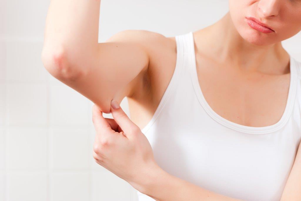 Como Emagrecer os Braços Gordos Sem Perder Músculos