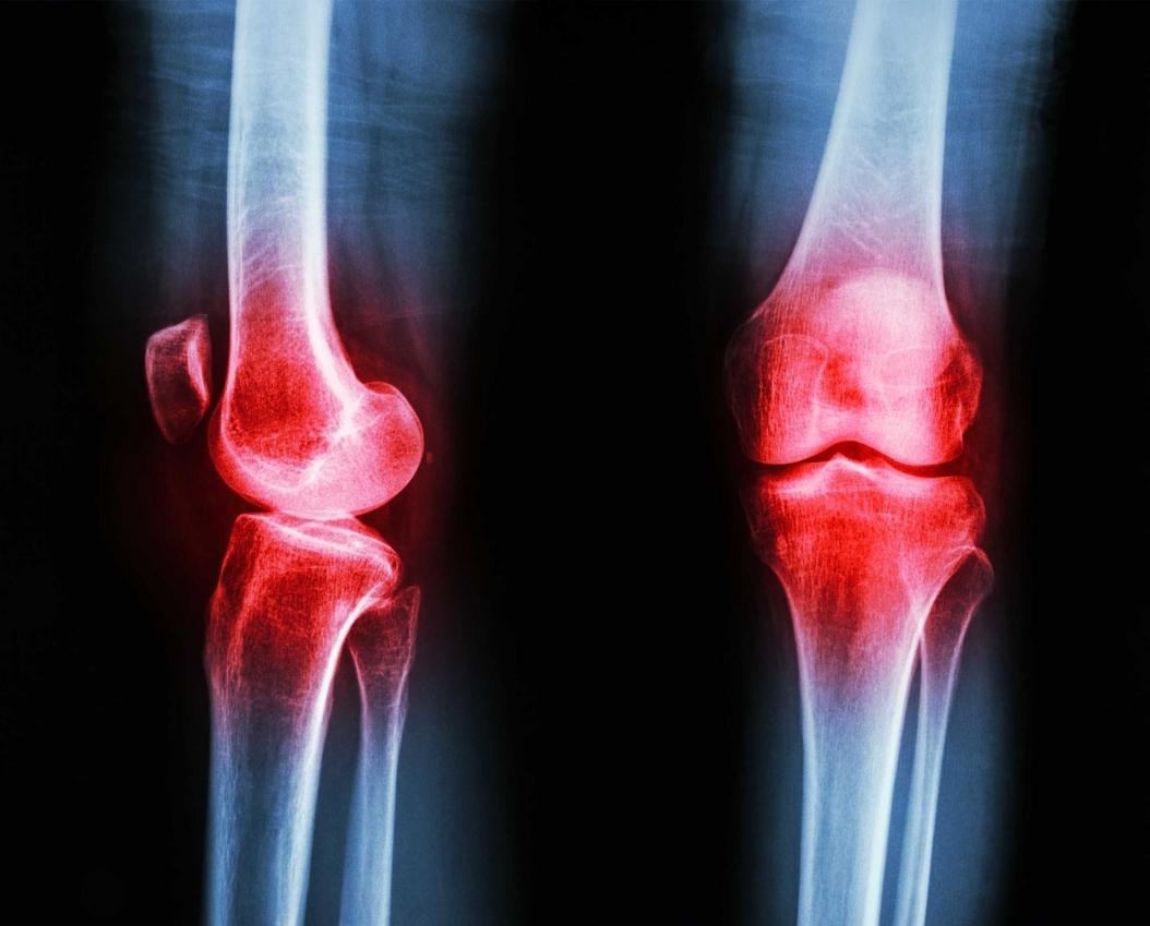 Osteomielite: Remédios Caseiros e Recomendações