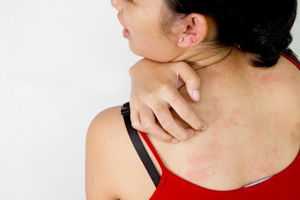 Remédios Para Prevenir a Alergia ao Sol