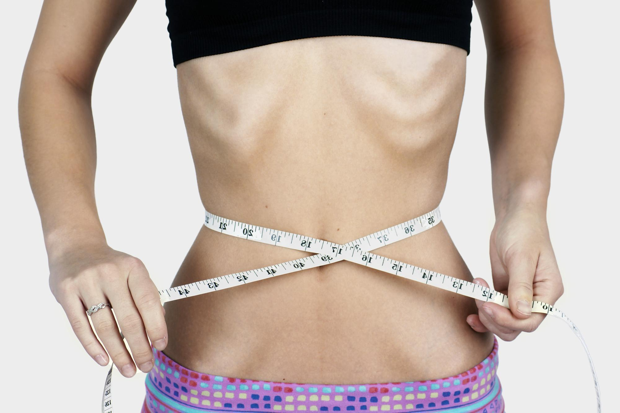 Sinais e Sintomas da Anorexia Nervosa