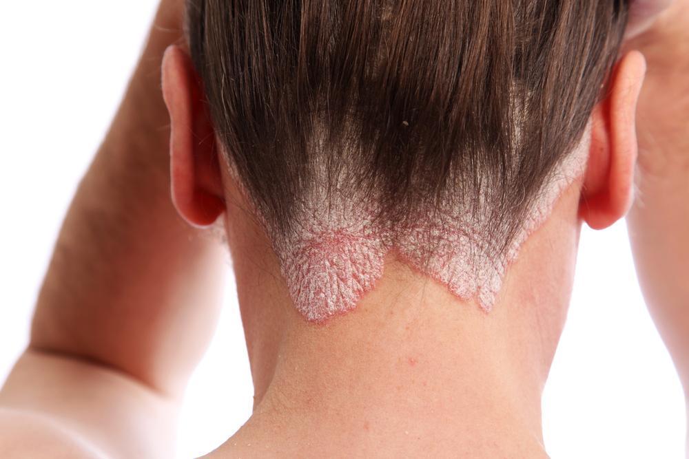 Resultado de imagem para dermatite seborreica