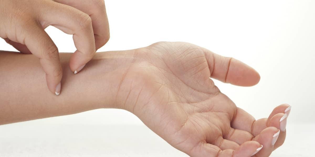 Eczema: Causas, Remédios Caseiros e Recomendações