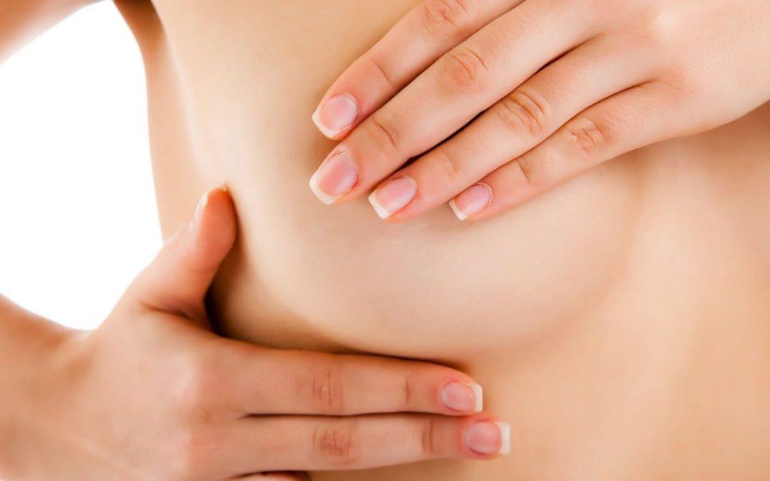 Mastite Sem Amamentação ou Mastite Periductal: Sintomas e Tratamento