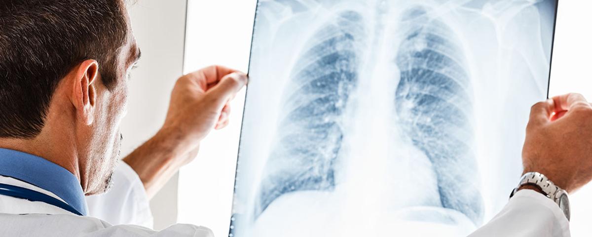 Pneumonia: Sintomas, Consequências e Remédios Caseiros