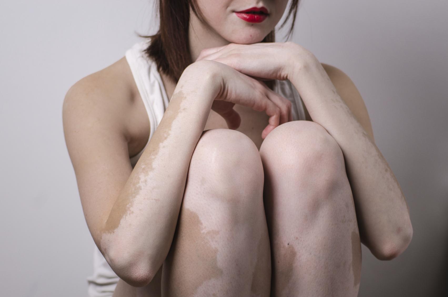 Remédios Caseiros Para Vitiligo ou Leucodermia