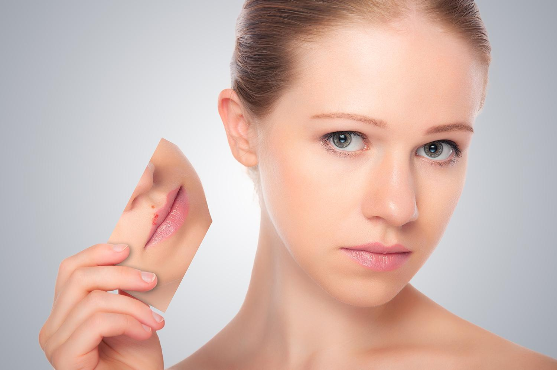 Suplementos Para Herpes Labial
