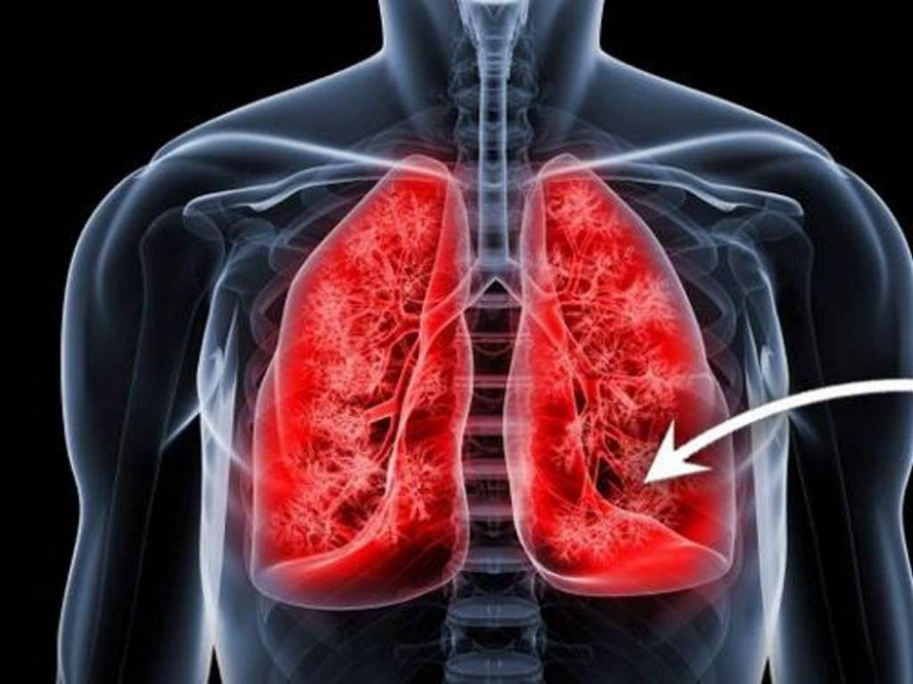 Remédios Caseiros Para Fibrose Cística