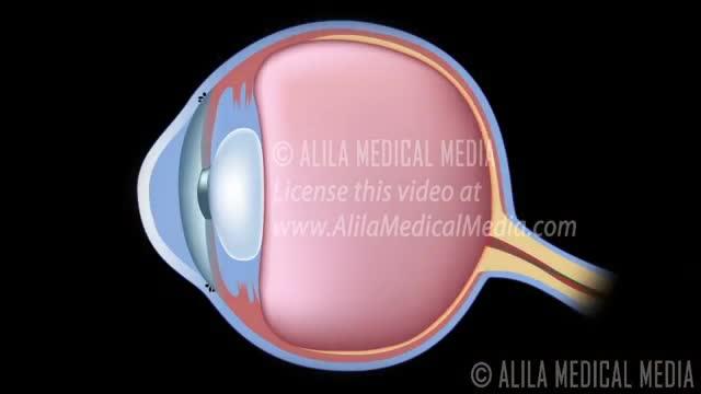 Desenvolvimento de glaucoma, ângulo aberto vs ângulo fechado. alila medical media português.