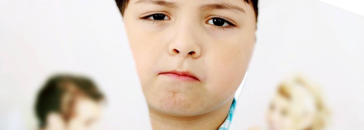 Síndrome de Prader Willi: O Que É, Causas, Sintomas e Tratamento