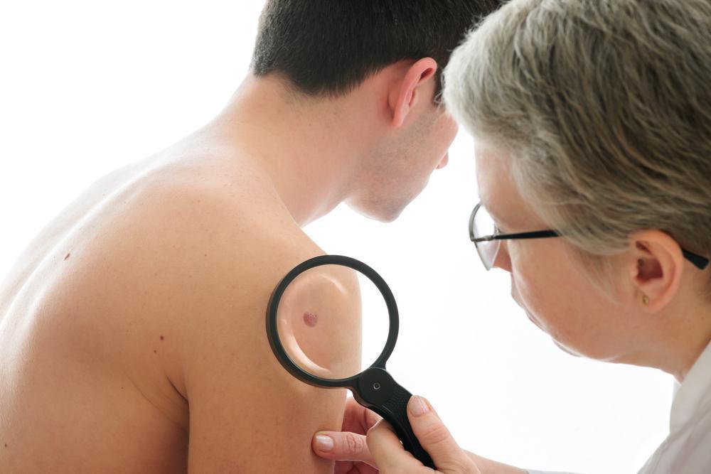O que Você Deve Saber sobre o Câncer de Pele