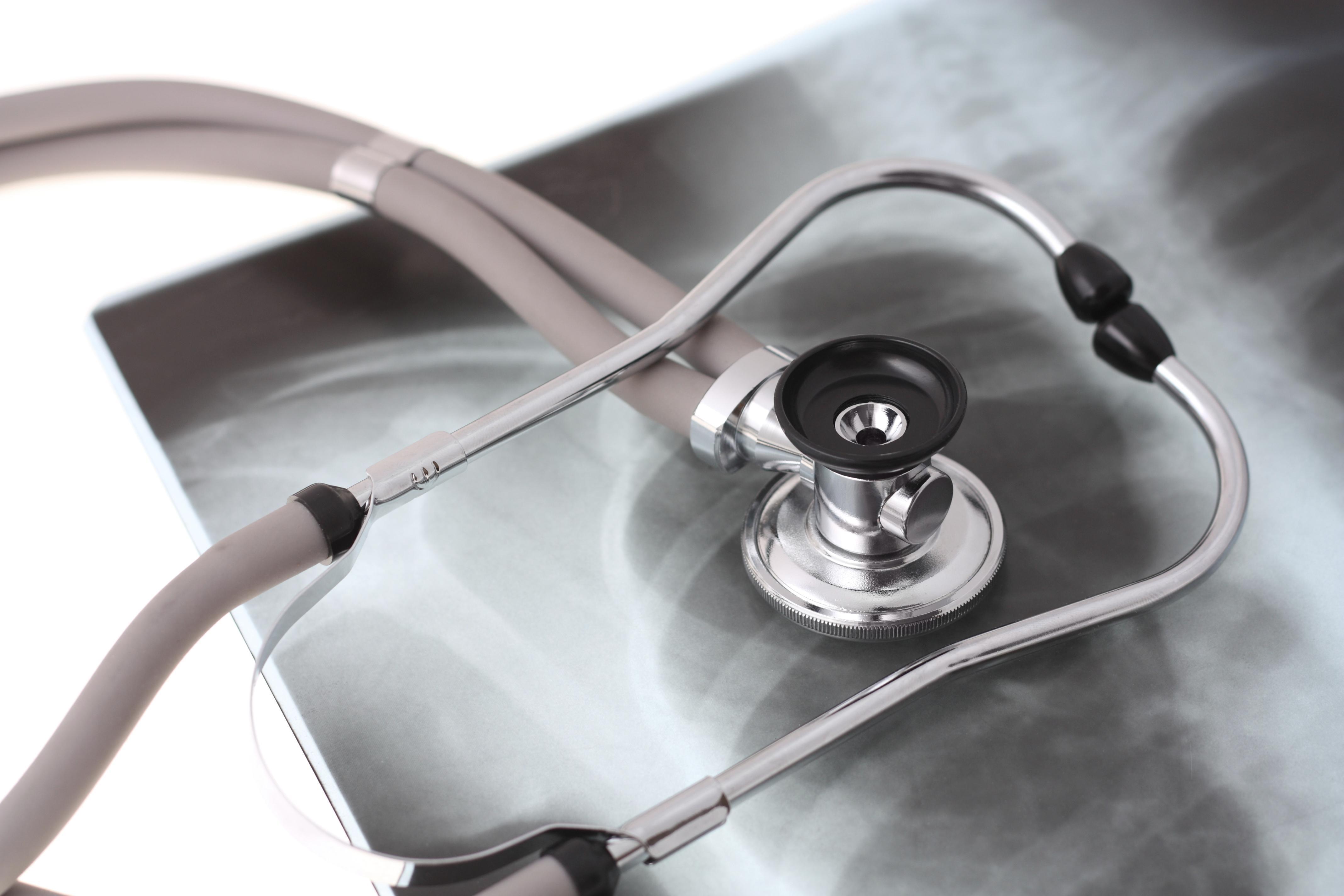 Sarcoidose: O Que É, Causas, Sintomas, Diagnóstico, Tratamento e Prognóstico