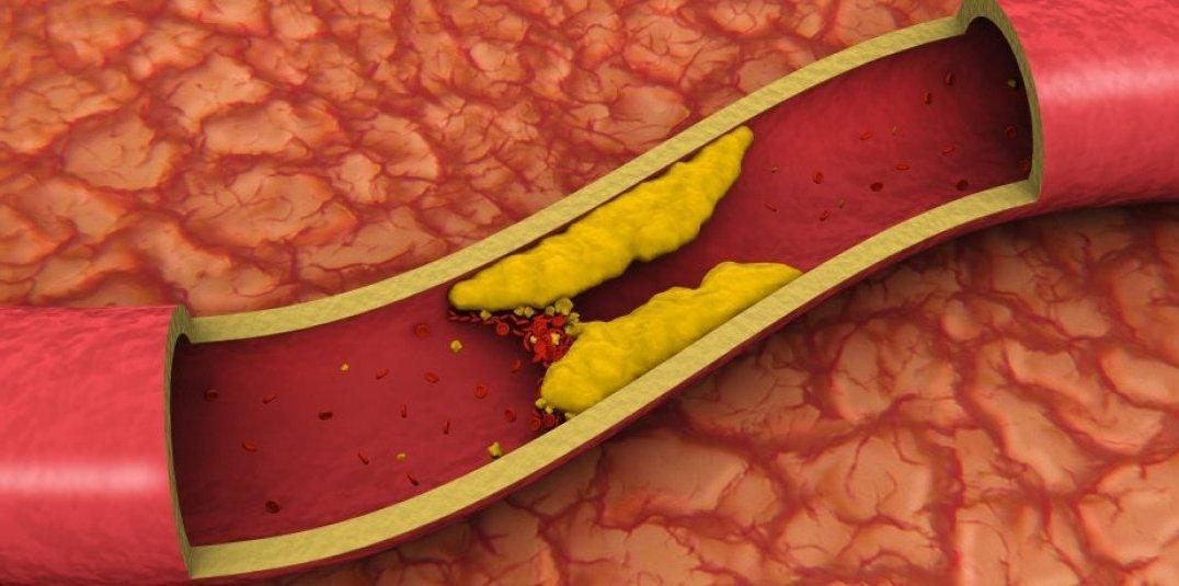 Como Reduzir o Colesterol Sem Uso de Medicamentos