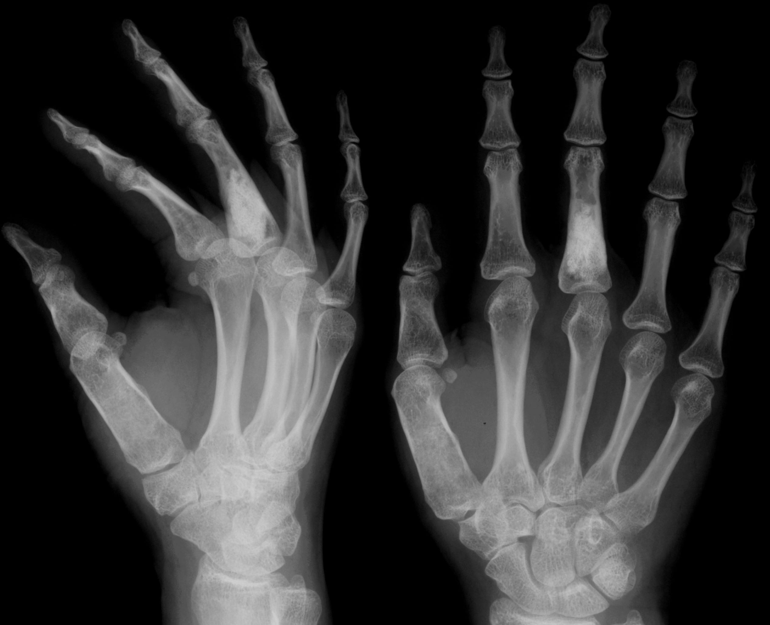 Doença de Ollier: O Que É, Causas, Sintomas, Diagnóstico e Tratamento