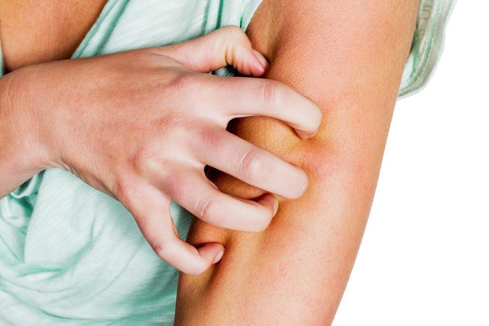 Alergia a Picada de Mosquito: Sintomas e Tratamentos