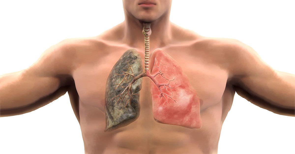 Câncer de Pulmão: Sintomas, Tipos, Tratamento e Expectativa de Vida