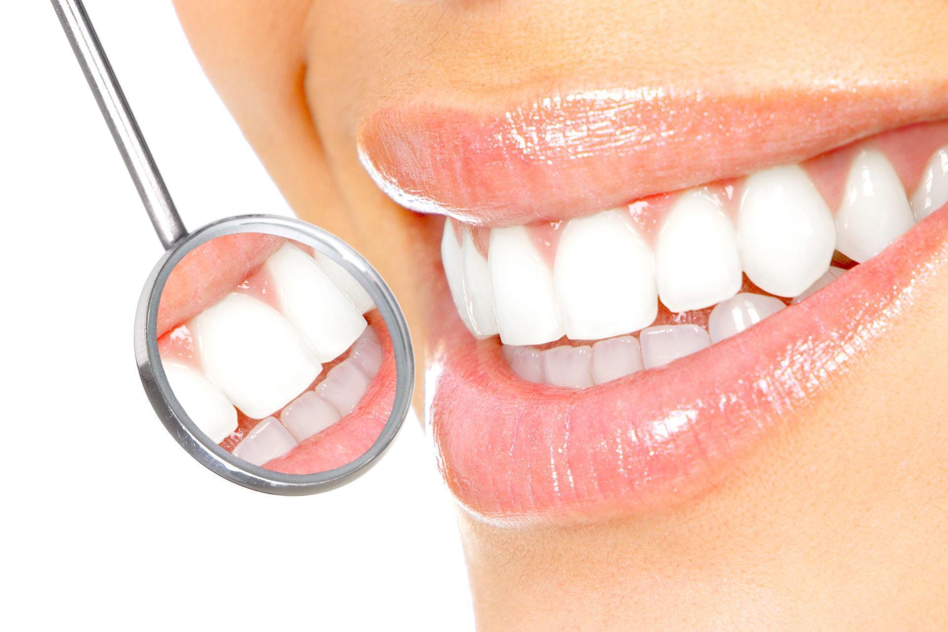 Desgaste do Esmalte do Dente: Sintomas e Tratamentos