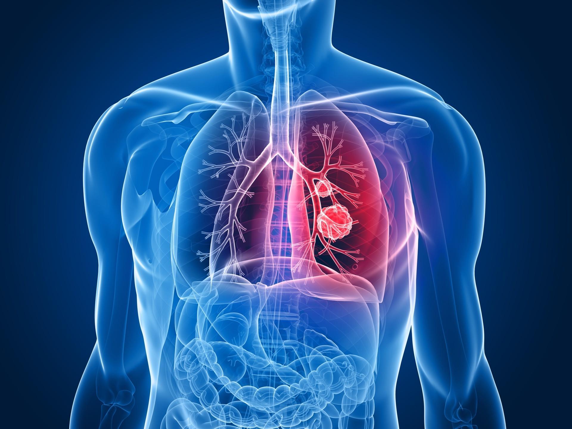 Quatro Dicas para Prevenir o Câncer de Pulmão