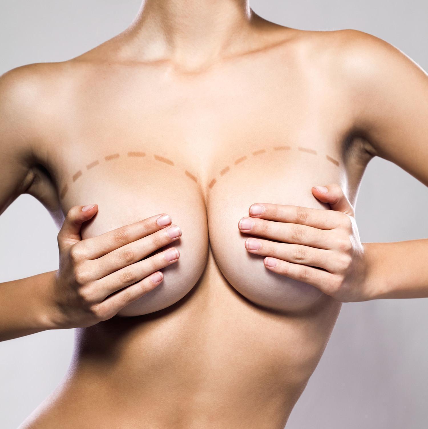 Como Evitar Ondulações Após Implante de Silicone nos Seios