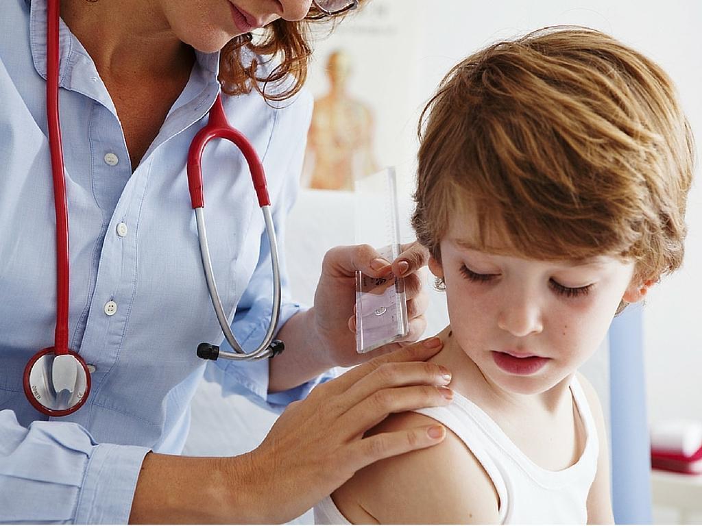 Como Tratar Molusco Contagioso na Pele da Criança