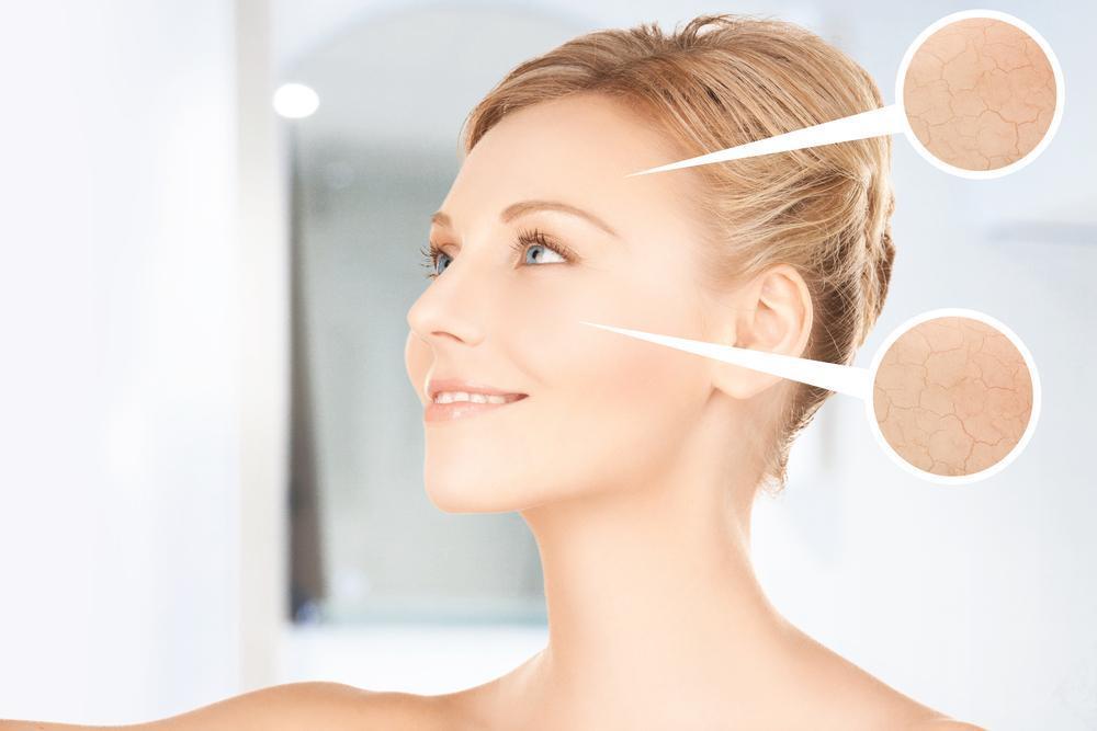 Efeitos da Radiofrequência Facial para sua Pele